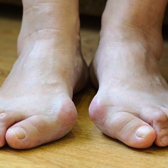 Prostep-Podiatry-Bunions