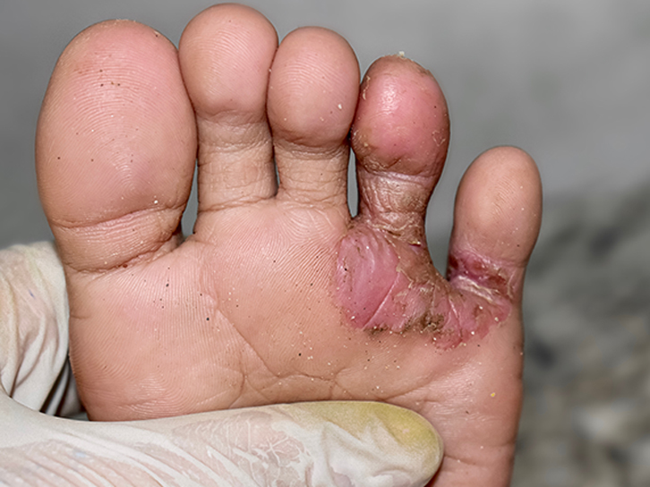 Prostep-Podiatry-Fungal-Infections