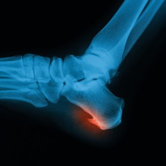 Prostep-Podiatry-Heel-Spurs