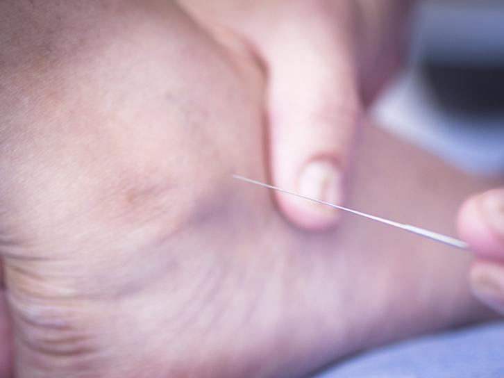 Prostep-Podiatry-Dry-Needling