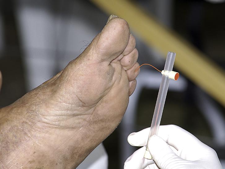 Prostep-Podiatry-Neurological-screening